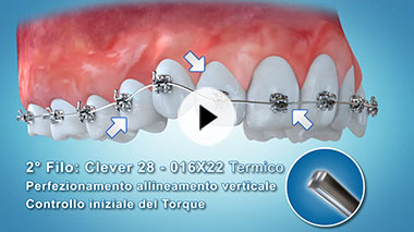Clever Orthodontics Video n.1