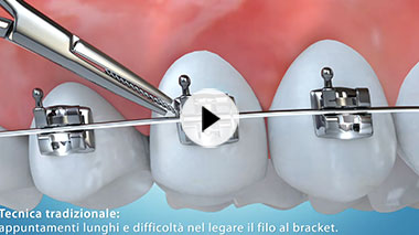 Clever Orthodontics Video n.2