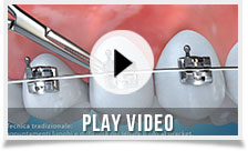 clever-orthodontics-play-video-01